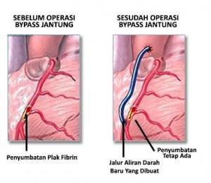 operasi bypass jantung