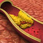 penyumbatan pembuluh darah arteri