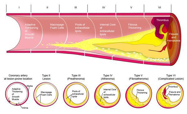 proses terjadinya plak penyumbatan pembuluh darah