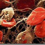 suplemen penyakit fibrinolysis