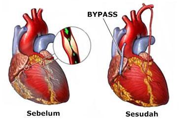 Tahukah kamu Apa itu Operasi Bypass Jantung?
