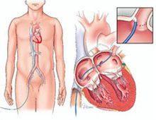 ablasi kateterisasi jantung