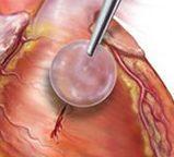 kateterisasi jantung berlubang