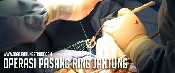 Operasi Pasang Ring Jantung