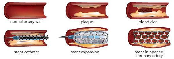 prosedur operasi pasang ring jantung pada tubuh
