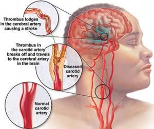penyebab stroke adalah thrombosis