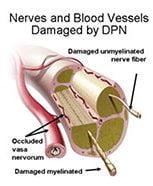 neuropathy diabet