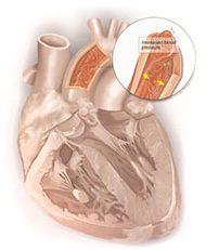 hipertensi penyebab penyakit jantung