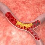 kolestrol memblokir jalannya darah