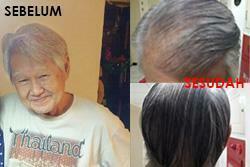 obat jantung gravistro untuk rambut