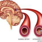 stroke iskemik dapat disembuhkan dengan produk gravistro
