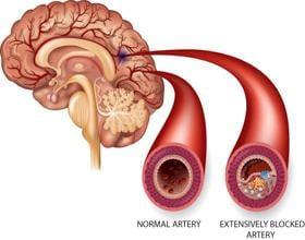 Perbedaan Antara Penyakit Stroke Iskemik Dan Stroke Hemoragik