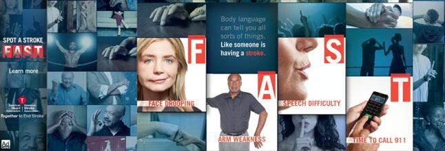 penyakit stroke penyebab stroke dan gejala stroke