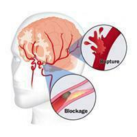 penyakit stroke yang harus anda ketahui