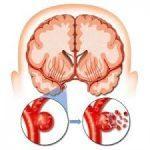 stroke hemoragik tidak dapat disembuhkan kecuali terapi