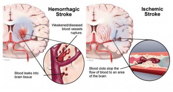 perbedaan stroke iskemik dan stroke hemoragik