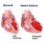 gagal jantung mengakibatkan pembengkakan jantung