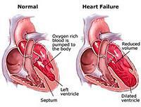 gagal jantung pada penderita penyakit jantung