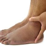 pembengkakan pada kaki adalah salah satu tanda-tanda penyakit jantung