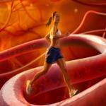 pembuluh darah yang menyempit mengakibatkan stroke