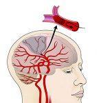 stroke non hemoragik paling sering terjadi