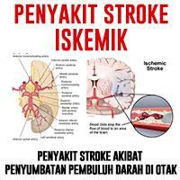 stroke non hemoragik dapat disembuhkan dengan gravistro