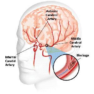 stroke iskemik disebut juga stroke penyumbatan pembuluh darah