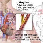 jenis - jenis angina pectoris