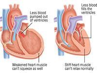 gagal jantung adalah salah satu jenis penyakit jantung akibat saluran terhambat