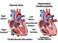 kardiomiopati adalah jenis penyakit jantung dimana otot jantung gagal memompa