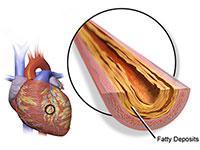 jantung koroner adalah salah satu jenis penyakit jantung akibat penyumbatan