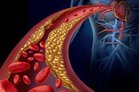 pembentukan plak pada pembuluh darah