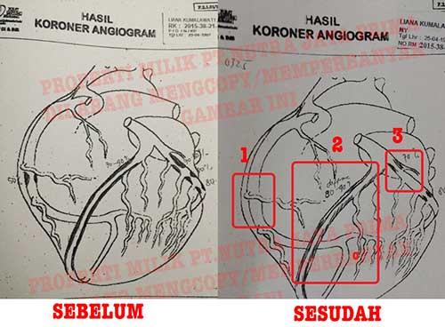 angiogram minum gravistro jantung koroner
